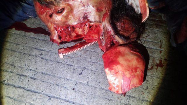 MUERE ATROPELLADO UN HOMBRE EN LA MÉXICO 83, SOBRE LA AUTOPISTA MÉXICO-PUEBLA