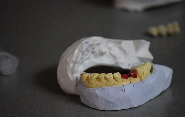 dientes, madre, golpes, hijo, ebrio, FGE, Amozoc, medidas cautelares, Código Rojo